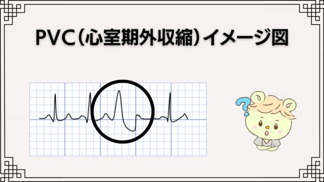 PVC(心室期外収縮)イメージ図