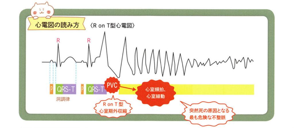 心電図の読み方 R on T型心電図